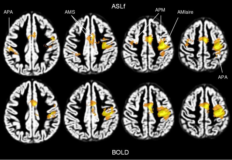 research_ASL_fasl_bold