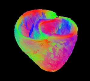 Average model of fibers in the heart