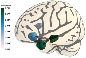 different regions of interest of the brain volume