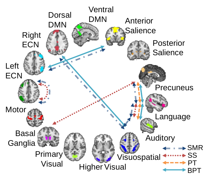 neuroimaging research paper analysis Features seen on neuroimaging include recent  submit a paper the lancet  neuroimaging standards for research into small vessel disease and its contribution.
