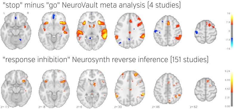 neurovault