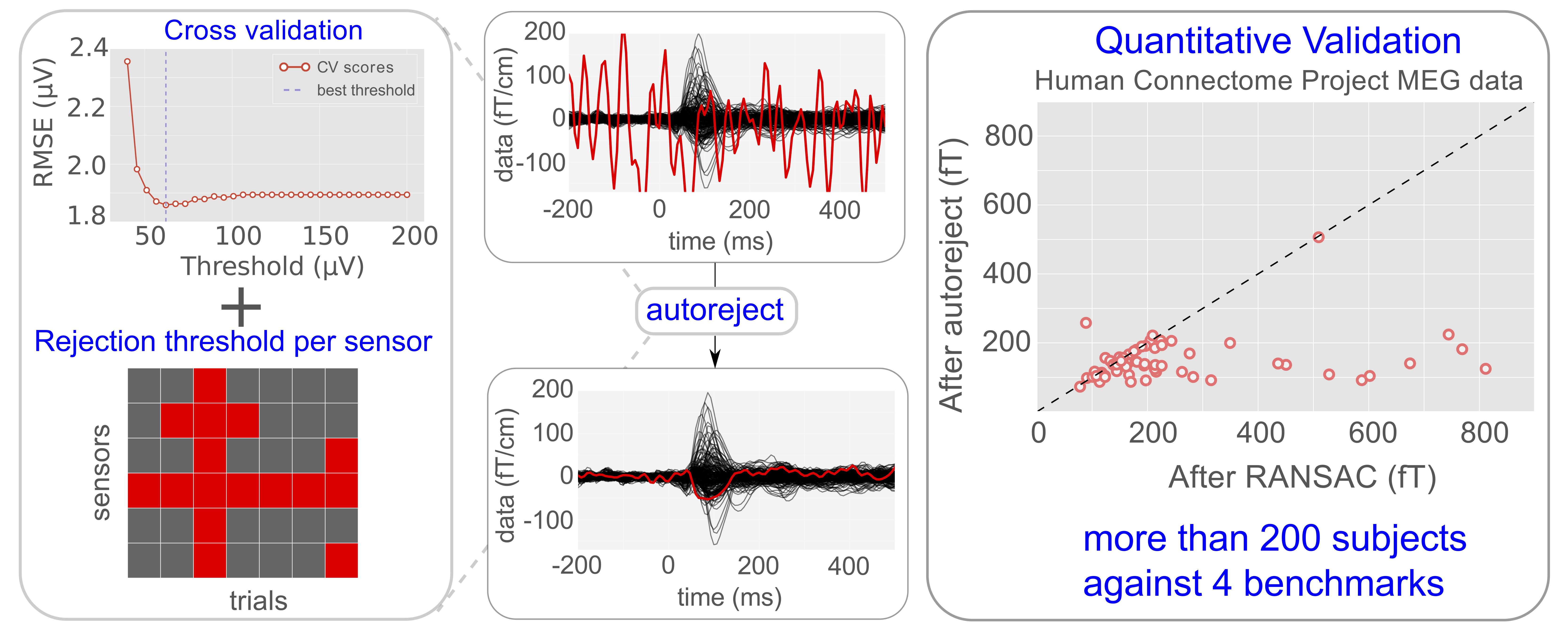Modeling for neuroimaging population studies – Parietal