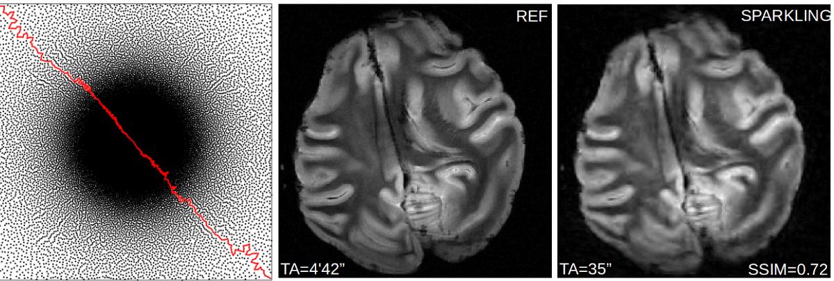 Compressed sensing for MRI – Parietal