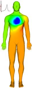 Body surface during ventricular depolarization