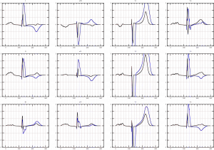 Simulated 12-leads Electrocardiograms: healthy case (black) and a Left Bundle Brunch Block (blue)
